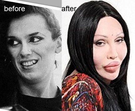 Pete Burns plastic surgery addict