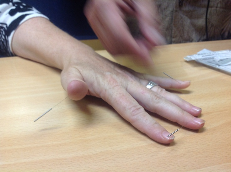 """2012-08-27 09.40.47  Needling demonstration at Dr Tan's balance method conference in London 2012. Amazing results are achieved using this style of acupuncture with lots of """"wow's from patients, gotta love that folk get relief from pain so swiftly"""