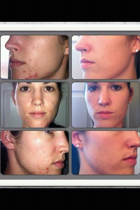 What Nerium can do for acne. This product is amazing. http://nerium.com/brendahammit/