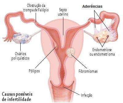 CLIQUE AQUI! Infertilidade feminina e suas causas Infertilidade feminina - Se uma mulher não engravida dentro de um ano de relações sexuais desprotegidas, ela pode ter problemas de fertilidade. http://saudenocorpo.com/infertilidade-feminina-e-suas-causas/