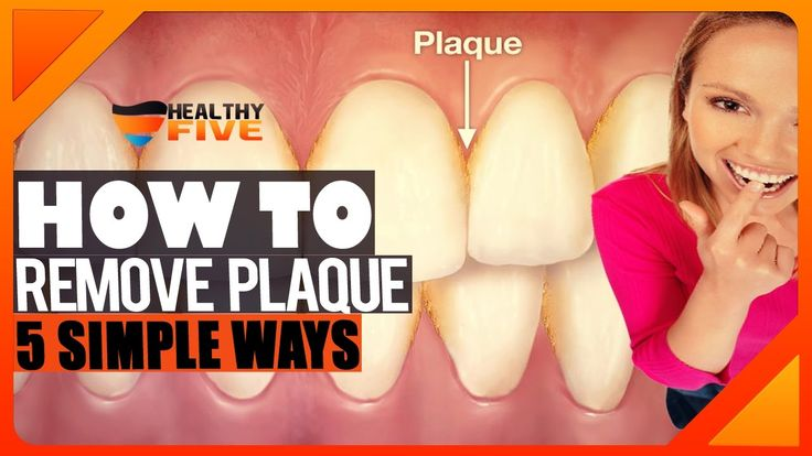 How to remove plaque from teeth at home without going