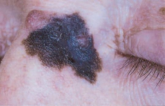 32 Best Basal Cell Carcinoma Skin Cancer Images On