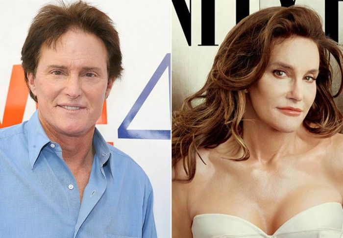 The Most Expensive Celebrity Plastic Surgery Procedures - #Celebrity_Plastic_Surgery, #Celebrity_Plastic_Surgery_Procedures, #Expensive_Celebrity_Plastic_Surgery  More Images and Full Article at http://sugarsurgery.com/the-most-expensive-celebrity-plastic-surgery-procedures/