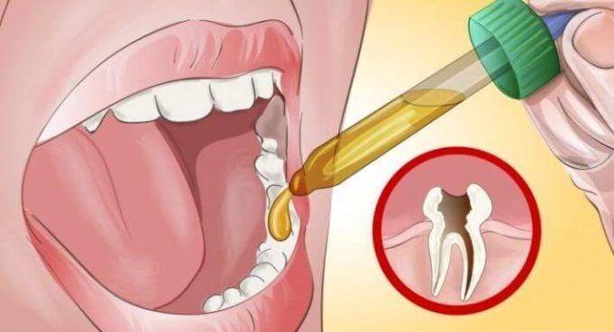 Můj zubař byl ohromený, když jsem mu řekl návod, jak se mi ulevilo od příšerné bolesti zubů (1)