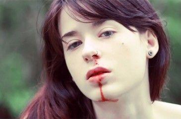 Кровотечение из носа у ребенка и взрослых. Как остановить носовые кровотечения - первая помощь