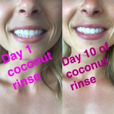 Use coconut oil or Oil Pulling for White teeth!