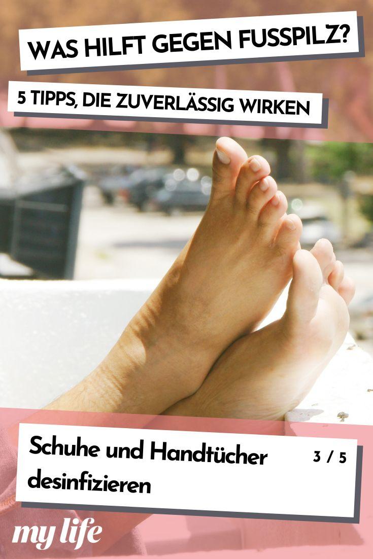 Was hilft gegen Fußpilz? 5 Tipps, die zuverlässig wirken