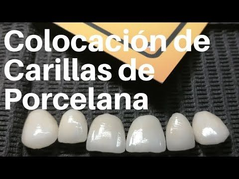 Prótesis dental fija - puentes, coronas y carillas. - YouTube