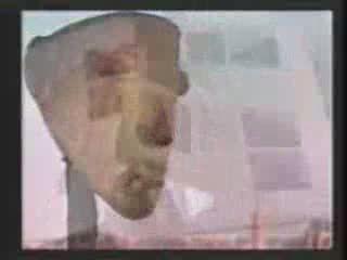 Traitement chirurgical d'une fente labio-alvéolo-palatine par greffe périostée