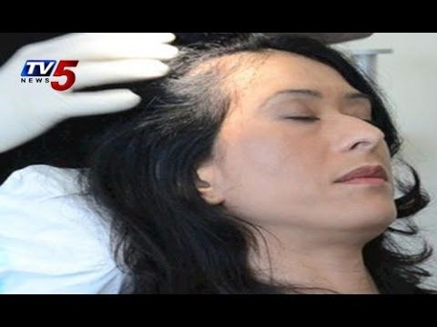 Vibes Dr Siromani | Hair Loss Treatment without PRP therapy : TV5 News -  How To Stop Hair Loss And Regrow It The Natural Way! CLICK HERE! #hair #hairloss #hairlosswomen #hairtreatment ► Subscribe to Tv5 News Channel: ► Like us on Facebook: ► Follow us on Twitter: ► Circle us on Tv5 News Channel G+: ► Follow us on Pinterest:  WATCH TV5 SHOWS: ► People's... - #HairLoss