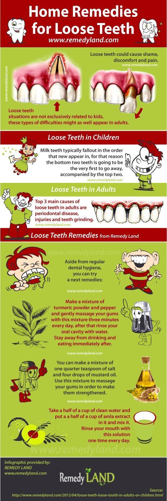 Loose teeth remedies #looseteeth #remedies http://www.remedyland.com/2013/04/loose-teeth-loose-tooth-in-adults-or-children.html