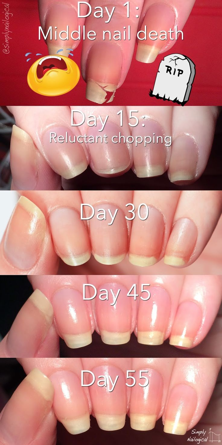 Simply Nailogical: Leaving the nub club: How to grow your nails Nails that are hard and break at wear the skin states and the mail extends out