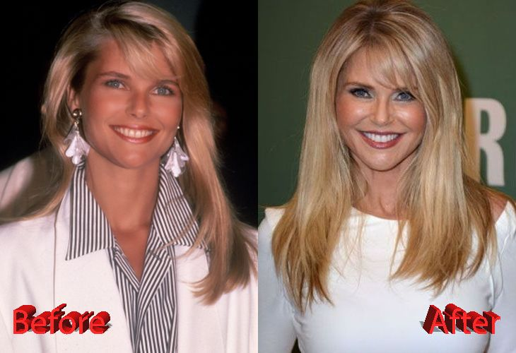 christie brinkley before and after facelift surgery