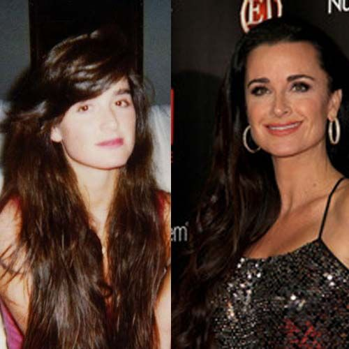 Kyle Richards Plastic Surgery Before and After images