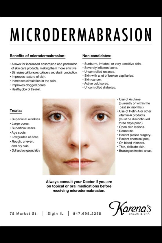 Microdermabrasion: I absolutely love it! Removes so many dead skin cells revealing a smooth, glowing, baby soft complexion & helps promote collagen stimulation.