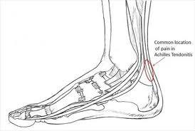 Achilles Heel Tendonitis Symptoms