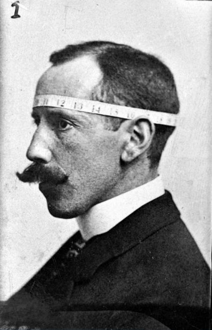 Phrenologist Bernard Hollander illustrating with his own head his system of cranial measurements 1902