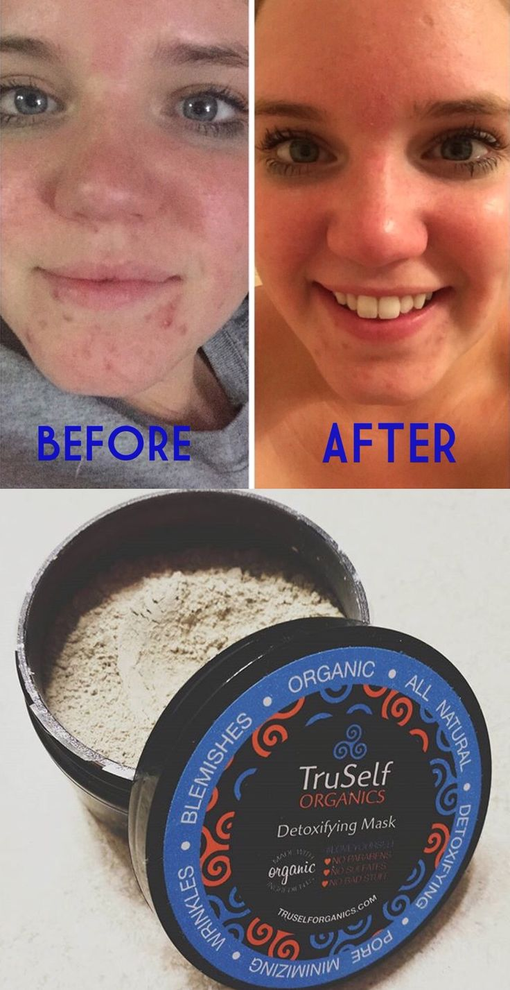Experience the transformation yourself, and see how our Detoxifying Mask: minimizes pores, reduces scars and discoloration, helps fight acne and diminishes wrinkles...Naturally!