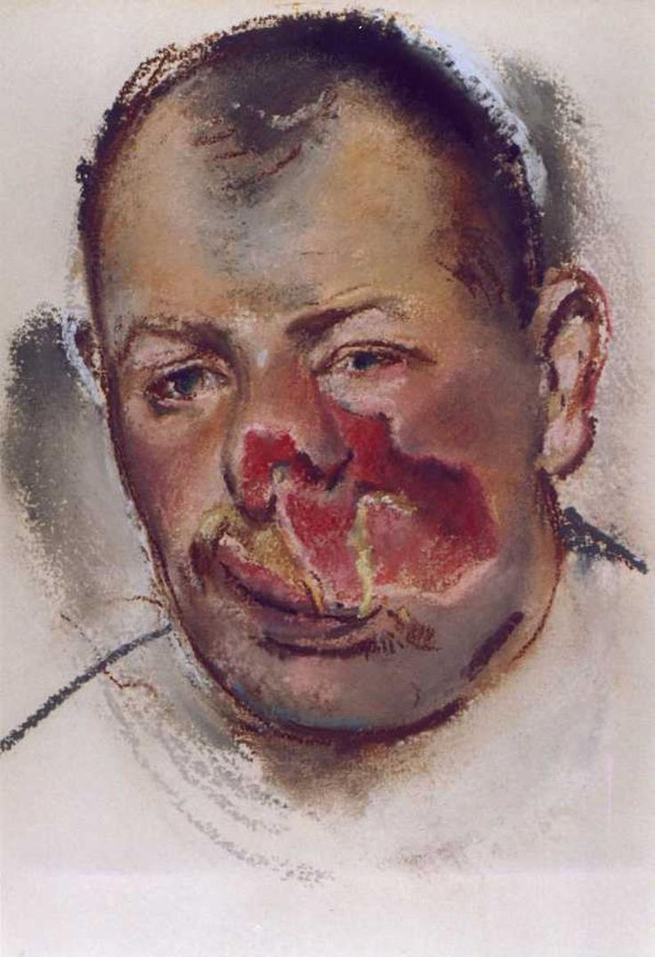 Henry Tonks drew these beautiful and terrifying pictures of wounded soldiers in the Cambridge Hospital in Aldershot in 1916.