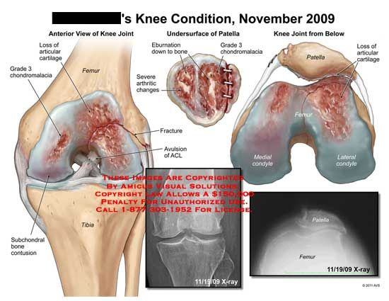 11 best images about knee on pinterest | patellar tendonitis, Skeleton