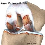 Arthritis confined to a part of the knee may be treated with a partial knee replacement.