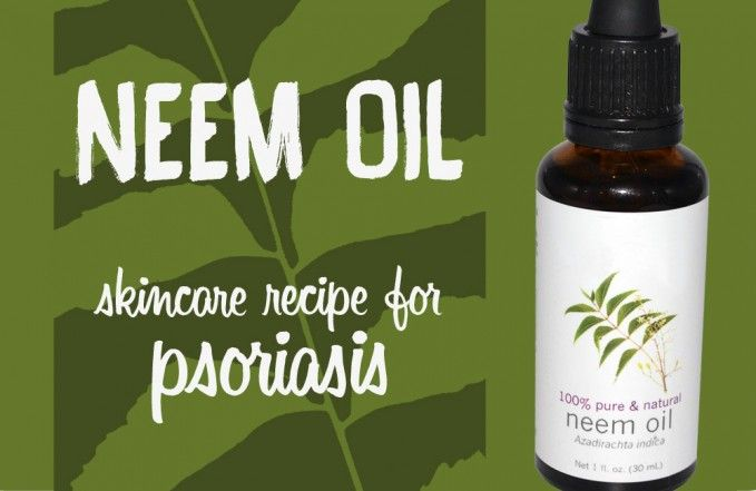 Neem oil is great oil for psoriasis: It heals lesions and scaling, soothes the irritation and it is antibacterial. Some people have great results with neem oil. The only drawback is that Neem oil has a garlic-nutty smell and it is not so nice to apply it on your body. However, it is a great alternative to steroids and it is worth trying this herbal remedy to help with psoriasis.