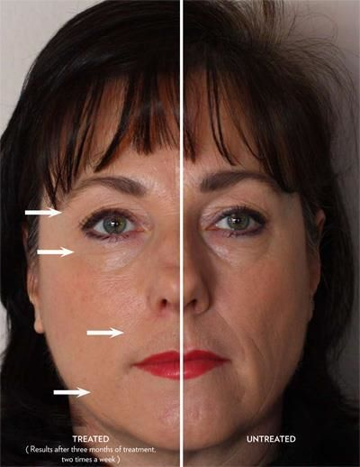 Before and after picture of how Instantly Ageless works.. Product from Jeunesse