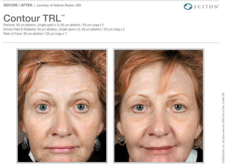Real Results from Sciton Contour TRL laser treatment:  http://www.facebook.com/ScitonInc/photos