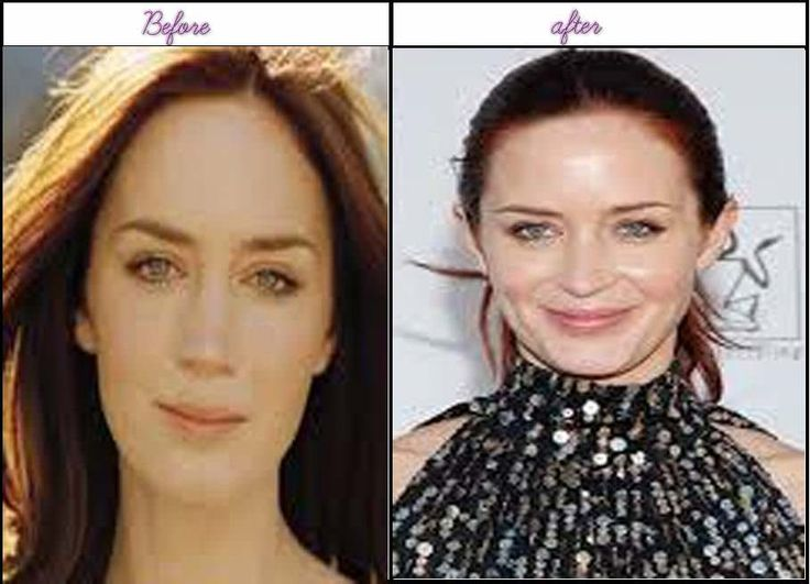 Photo Of Emily Blunt Just After Prior To Plastic Sugery - http://www.aftersurgeryjob.com/photo-emily-blunt-prior-plastic-sugery/