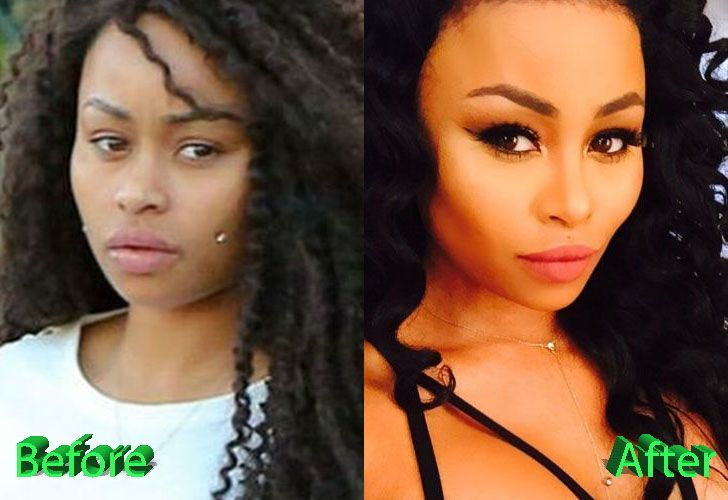 Similiar Blac Chyna Before Surgery Keywords