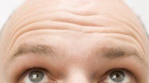 A biological clue to male baldness has been discovered, raising the prospect of a treatment to stop or even reverse thinning hair.