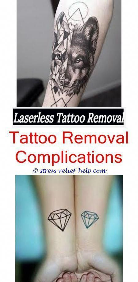 Tattoo Away How To Remove Knuckle Tattoos Laser Eyebrow Tattoo