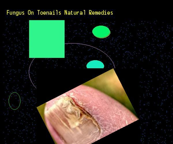 Fungus on toenails natural remedies  Nail Fungus Remedy. You have nothing to lo