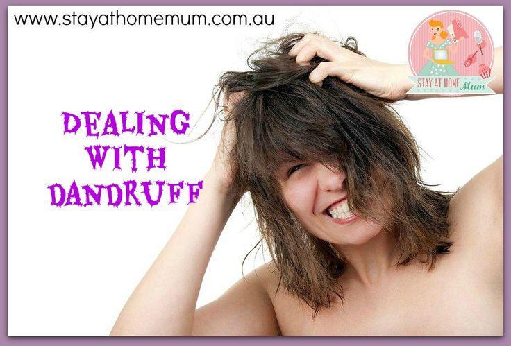 Dealing with Dandruff and an Itchy Scalp | Stay at Home Mum