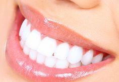 Come avere denti bianchi: rimedi naturali e trattamenti per sbiancare i denti e sfoggiare un sorriso bianco e perfetto.