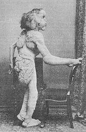 Joseph Merrick - Wikipedia, the free encyclopedia