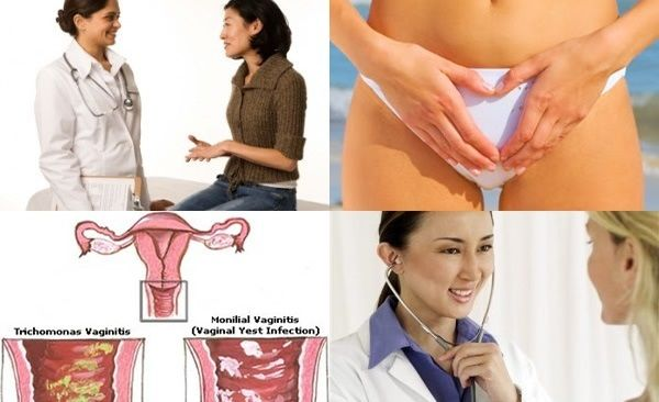 Vaginal Problems: Some Common Vaginal Discharge, Dryness Problems and Prevention