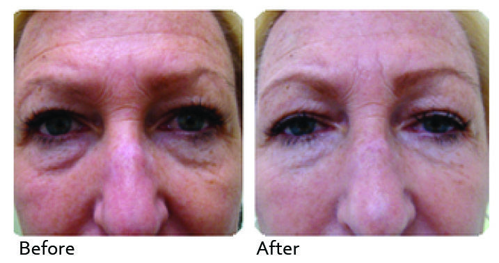 ClearLift is a virtually painless treatment to improve fine lines, wrinkles and redness caused by broken vascularity. It works beneath the skin surface to stimulate the skin cells to produce more collagen which makes the skin tighter and fresher.  http://www.dnahealthcorp.com/pages/clearlift-pixel
