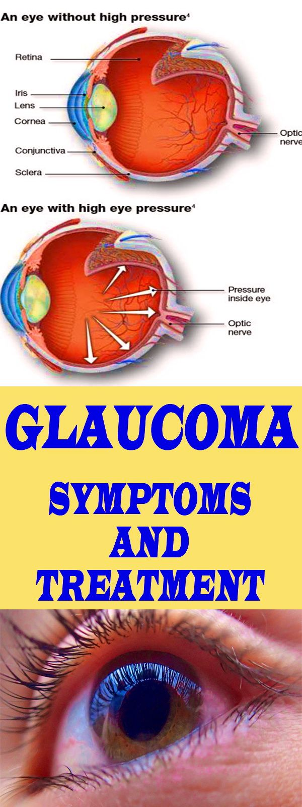 Glaucoma is not a disease of only one eye but on the both eyes resulting in nerve damage that can cause vision loss.