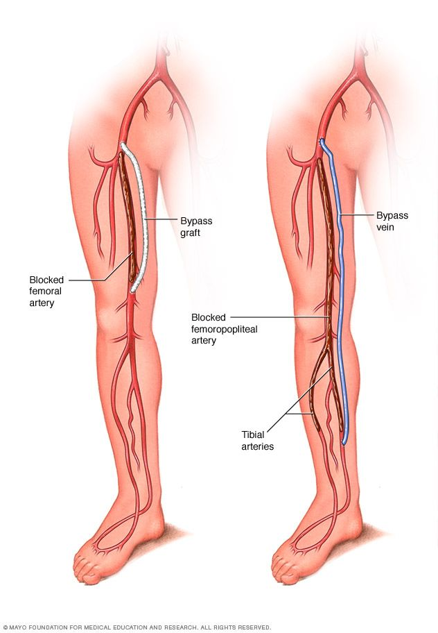 Graft bypass for peripheral artery disease