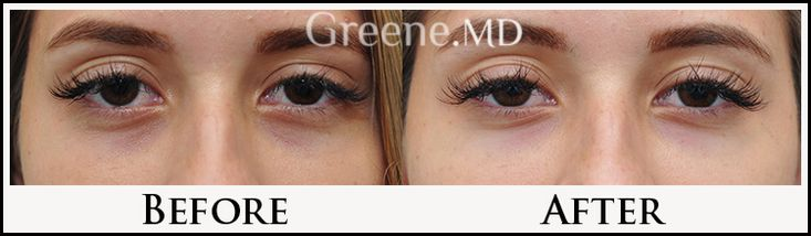 Improvement of under eye darkness with Restylane injection to the tear trough by Dr. Ryan Greene