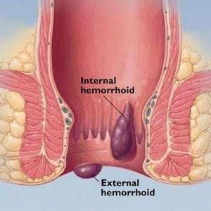 There are 4 stages of internal hemorrhoids. Internal hemorrhoids can be treated with our quick 10-minute, in-office procedure that is non-surgical. STOP SUFFERING TODAY! http://www.realhemorrhoidstreatment.com/Home-Remedies-for-Hemorrhoids.html
