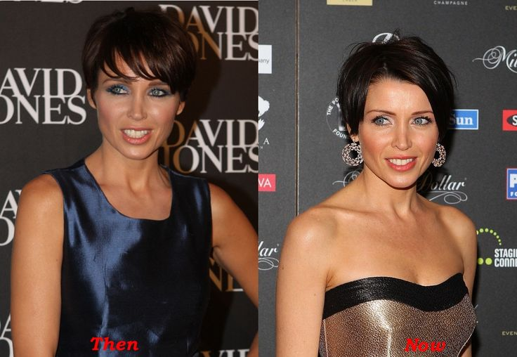 Dannii Minogue Plastic Surgery Before And After Botox
