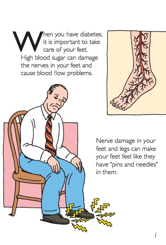 Diabetic neuropathies are neuropathic disorders that are associated with diabetes mellitus. These conditions are thought to result from diabetic microvascular injury involving small blood vessels that supply nerves (vasa nervorum) in addition to macrovasc