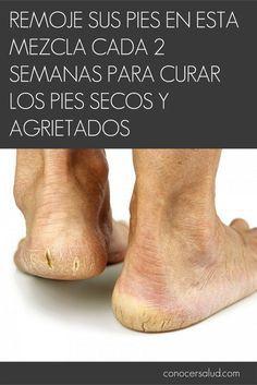 Remoje sus pies en esta mezcla cada 2 semanas para curar los pies secos y agrietados #salud