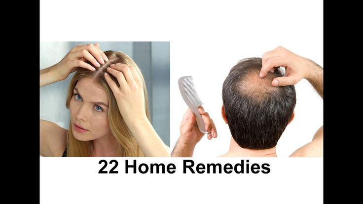 22 Home Remedies For Hair Regrowth - How To Regrow Your Hair - Hair Fall Treatment (Men Women). I covered Aloe Vera, Apple Cider Vinegar, Spinach, Grapeseed, Saw Palmetto, Green Tea, Ginkgo herb, Benefits of Minerals, Garlic, Vitamin B for hair regrowth. I also covered why Iron Rich Foods, Drinking Water, Vitamin C Rich Foods Leafy vegetables, Vitamin E, Aromatherapy, Rosemary, Onion, Vitamins A helpful in hair regrowth etc...  https://www.youtube.com/watch?v=FbGNkey5oWw  #hair #hairloss…