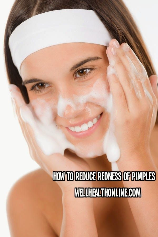how to get redness away from pimples