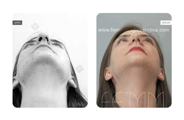 Fotografías antes y después de una cirugía plástica de Rinoplastia abierta realizada a una paciente, con estrechamiento de la punta nasal y acortamiento de la longitud nasal. También se corrige la asimetría y la desviación intrínseca de la punta nasal.