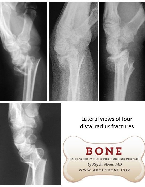 distal radius fractures, lateral x-ray radiology views, aka Colles