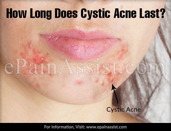 how long acne last